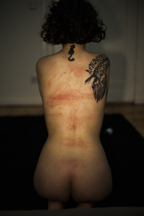 rope marks